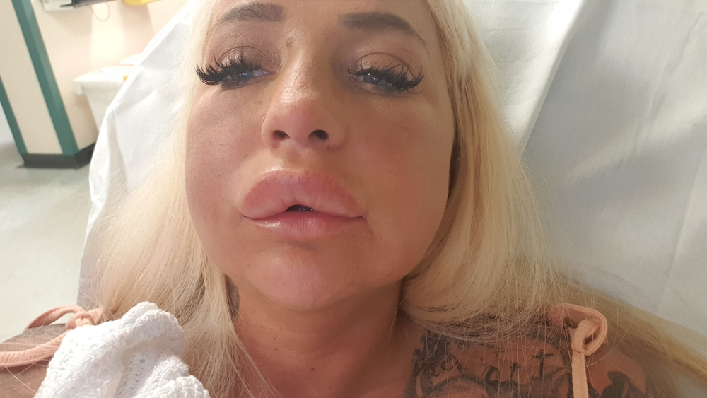 Porn Star 'Nearly Dies' After Getting £300 Lip Fillers