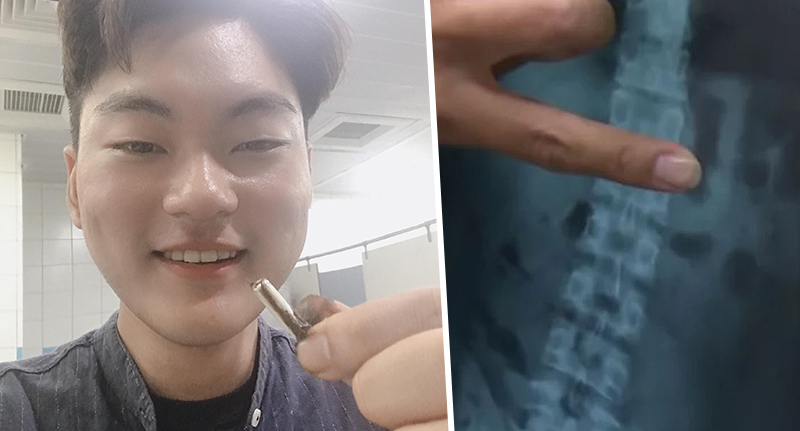 Man swallowed airpod and pooed it out