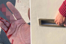Man loses his finger in a letterbox.
