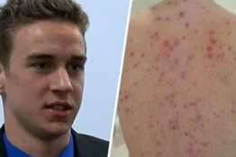 Teen sues after being banned from school because of chickenpox