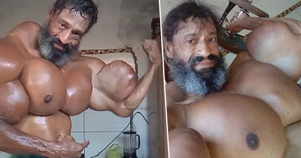 Bodybuilder injects biceps with oil