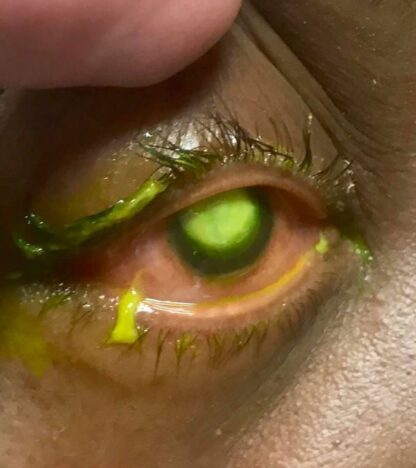 Eye doctor warns those who go to sleep without taking their contact lenses out.