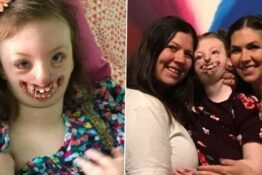 Disfigured Child Trolled For Appearance Dies Aged 10