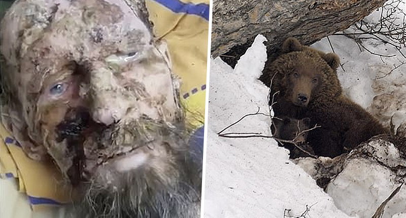 نتيجة بحث الصور عن ‪Original video of a Man who was close to death is rescued from bear den after one month‬‏
