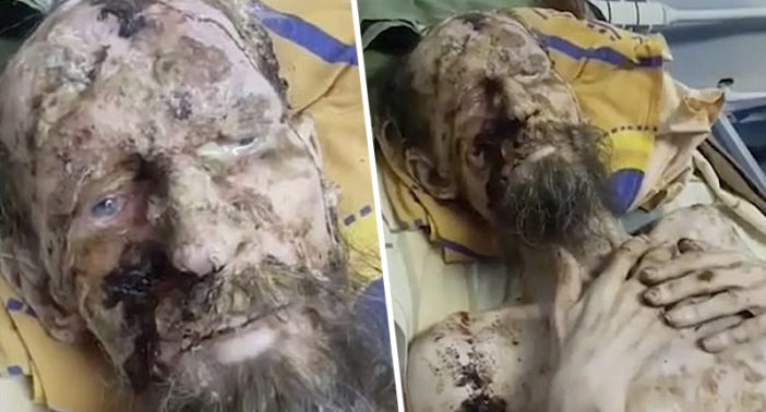 Doctor Says 'Mummified Man Mauled By Bear' Is His Patient And Has Severe Psoriasis