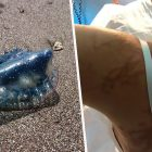 Killer Man O' War Jellyfish Closes Benidorm Beaches After Seven People Stung