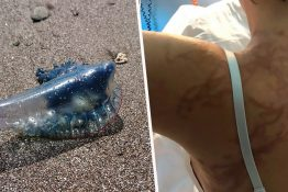 Killer Man O' War Jellyfish Closes Benidorm Beach After Seven People Stung
