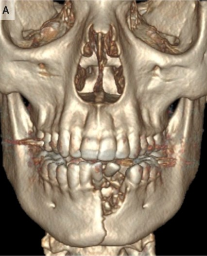 broken jaw scan