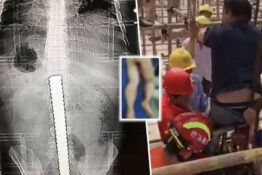 Builder impaled through bum after falling