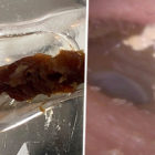 Biggest Clump Of Earwax Ever Recorded Removed From Patient