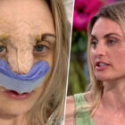 Model Defends Faking Depression To Get £7,000 Nose Job On NHS