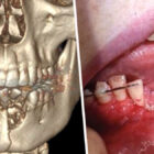 Teen's Jaw Shatters After Vape Pen Explodes In His Mouth