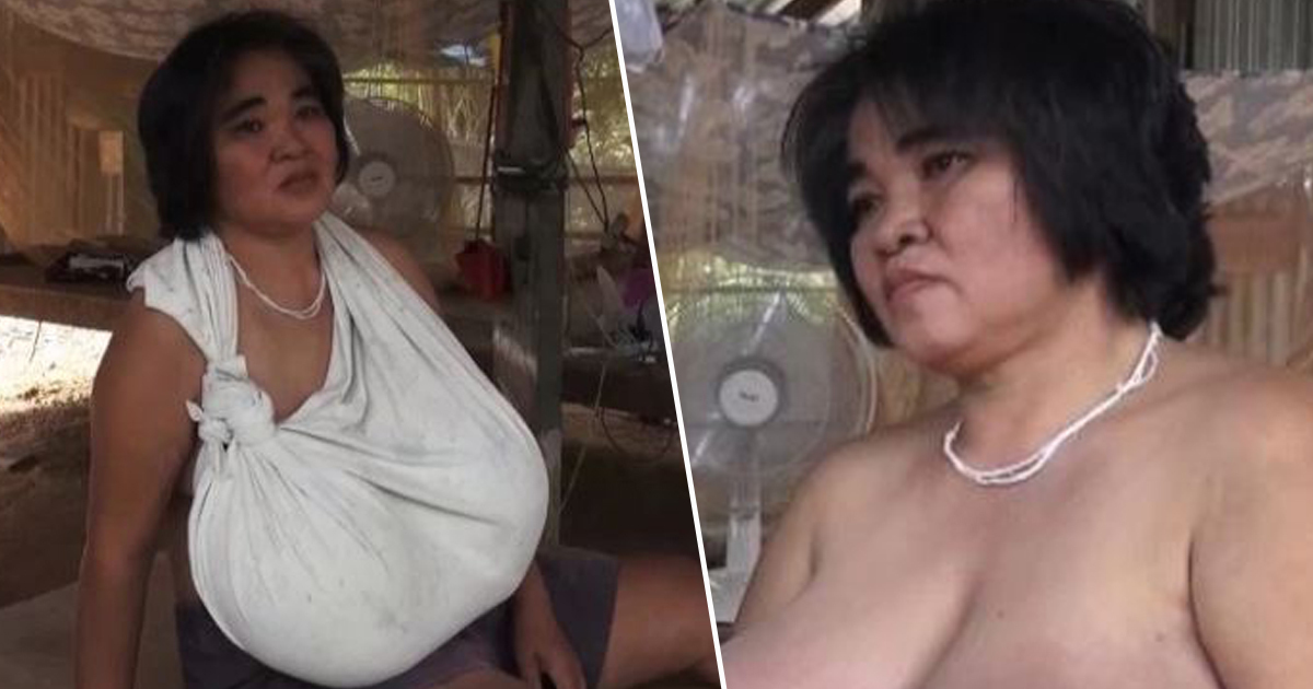 Woman's Breasts Won't Stop Growing And Doctors Have No Idea Why