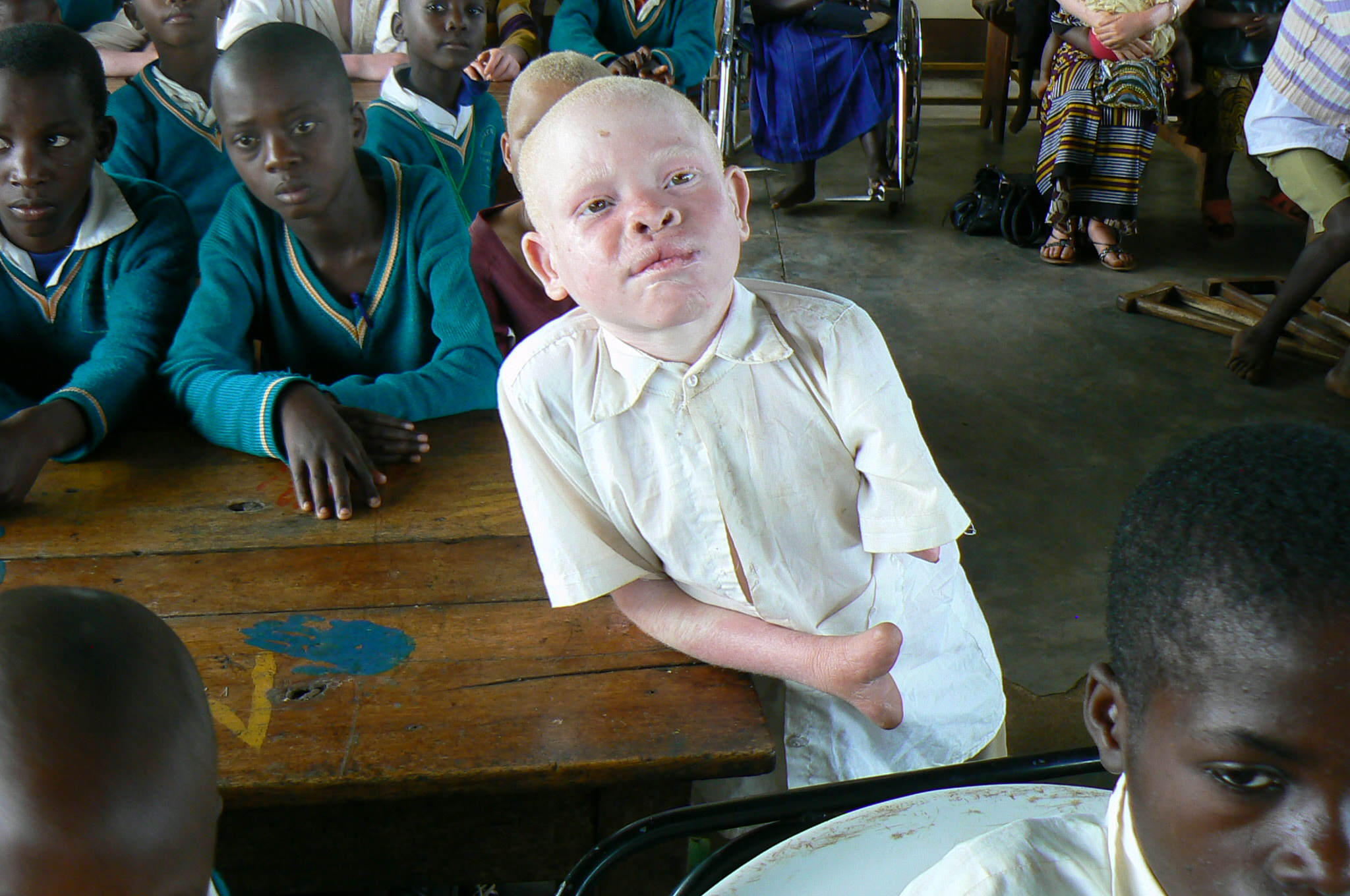 Albinos In Tanzania Are Being Hunted For Their Limbs