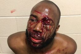 Man beaten by police
