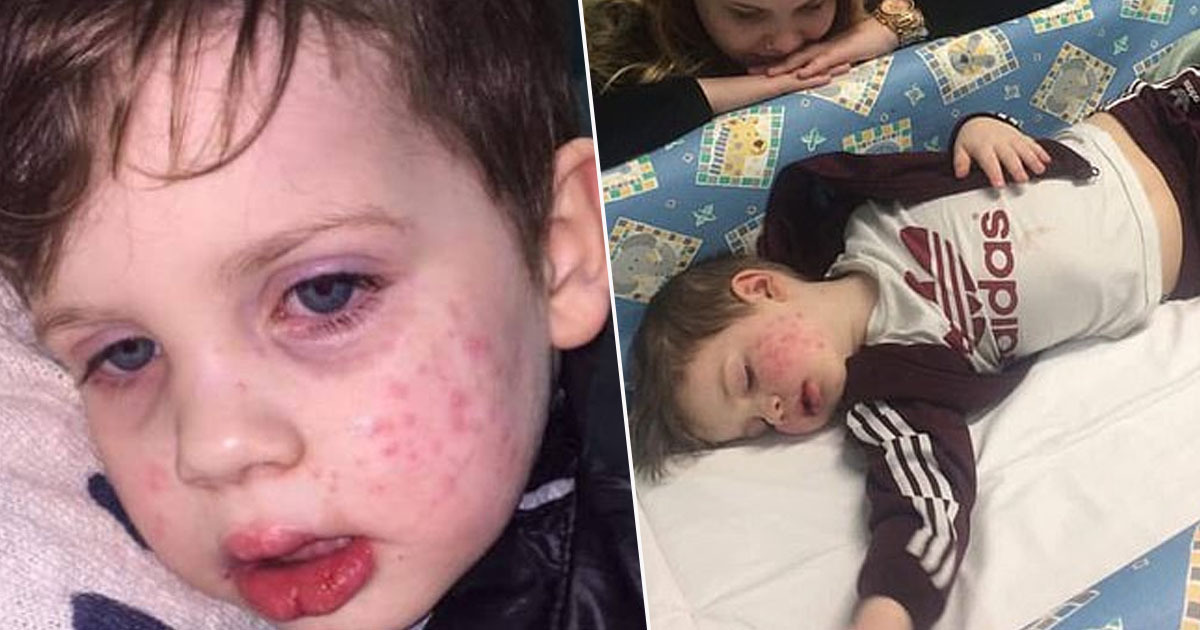 Toddler 'Almost Blinded' After Catching Herpes When Kissed By Relative