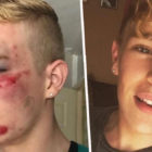 Homophobic Attack In Street Leaves Man With Horrific Injuries