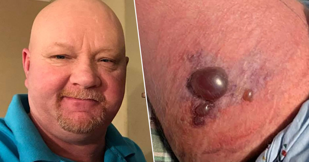 Man Fighting For His Life After Contracting Flesh Eating Bug On Kayaking Trip