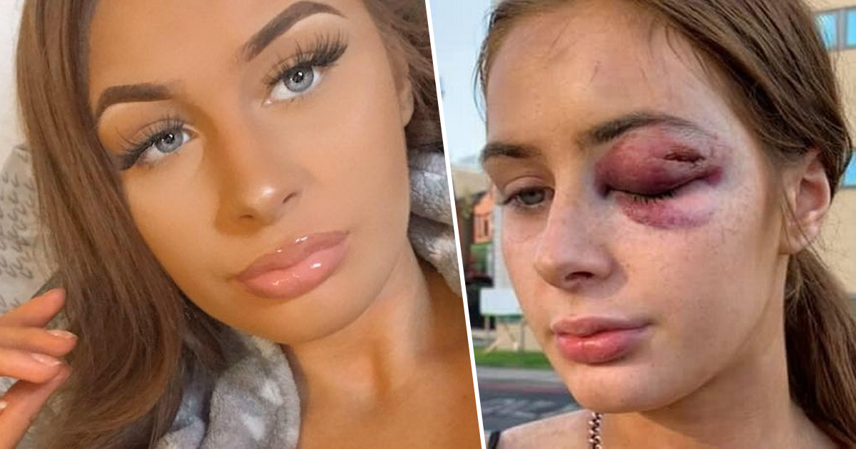 Teen left with injuries after telling guy she wasn't interested