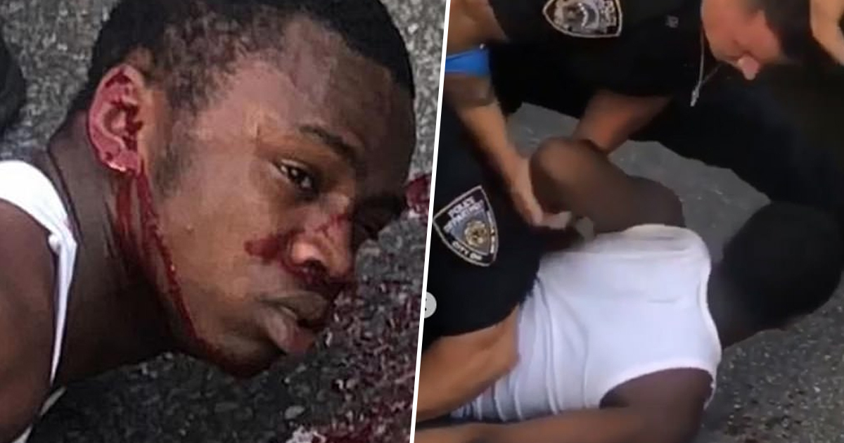 Kevin Diaby Man Beaten Bloody By NYPD During Traffic Stop Is Suing For Millions