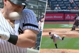 Yankees baseball player luke voit hit in face