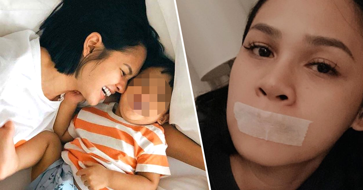 Singer sleeps with tape over mouth