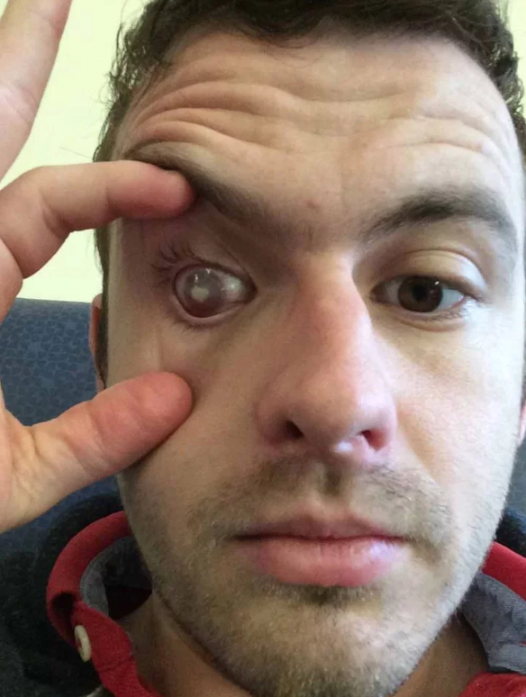 Man Who Showered In Contact Lenses Blinded After Parasite Burrowed Into His Eye