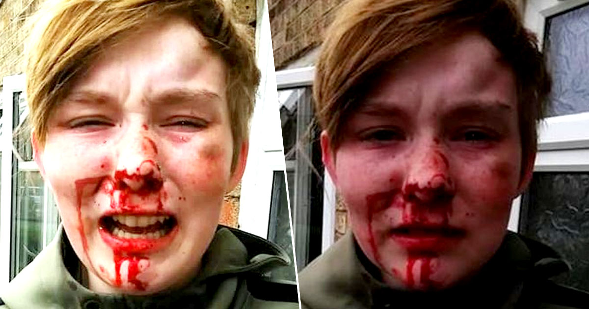 Teen Called 'F*cking Lesbian' By Friends During Brutal Attack