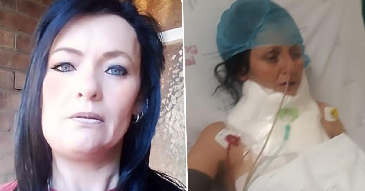 Woman Goes To Dentist With Toothache Turns Out To Be Flesh-Eating Bug south africa CEN