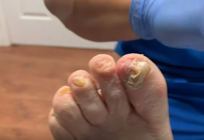 Dr Binh Nguyen Fungal Infection Toe Nail