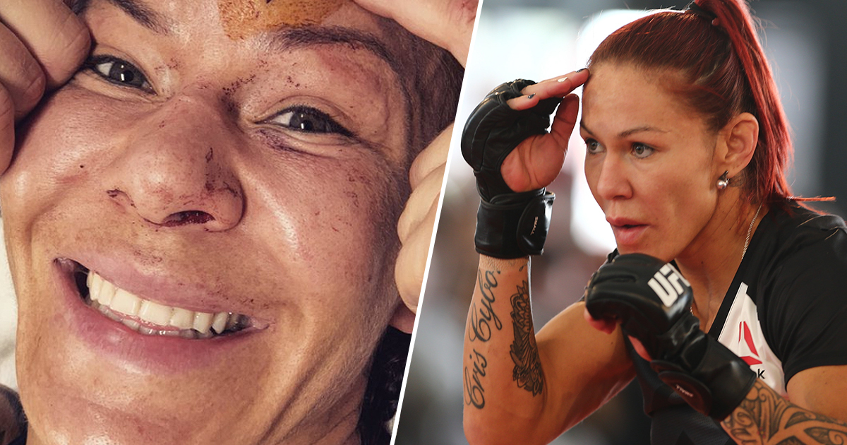 Cris Cyborg Shares Gruesome Post-Fight Photo Of Her Actual Skull
