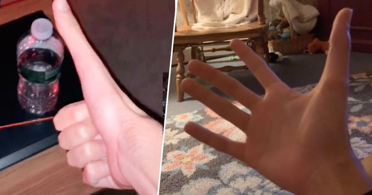 Man's Bizarre Five Inch Thumb Stuns The Internet 5 inch