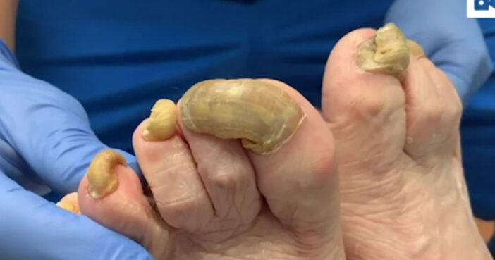 Horrifying Video Show What Happens When You Leave Fungal Infection Untreated For A Year