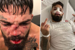 Mike Perry Hospitalised With Breathing Problems After One Of Worst Nose Breaks In UFC History