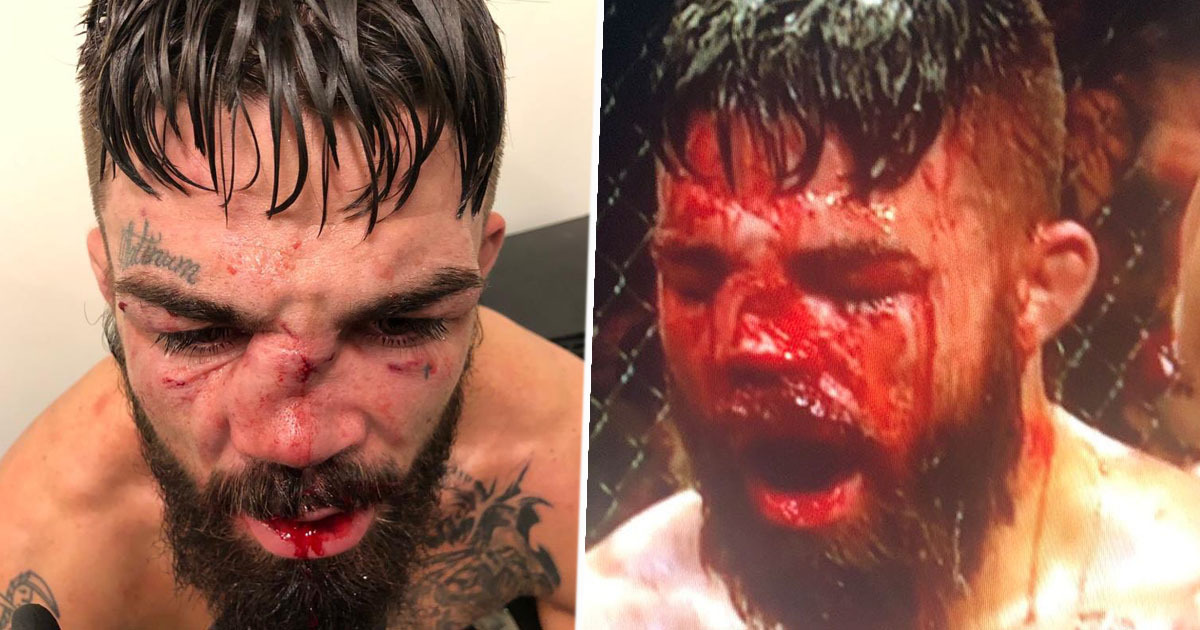 Mike Perry Suffers One Of Worst Nose Breaks In UFC History