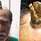 Man's Horror As Four Inch 'Devil Horn' Grows Out Of His Head