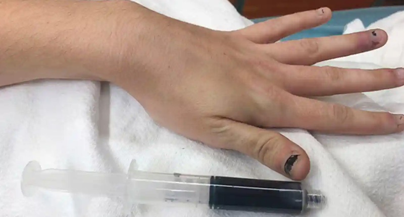 Woman Turns Up To Hospital Because Her Blood Had Turned Blue
