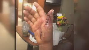 Woman Almost Loses Arm To Flesh-Eating Bacteria 'Contracted At Nail Salon'