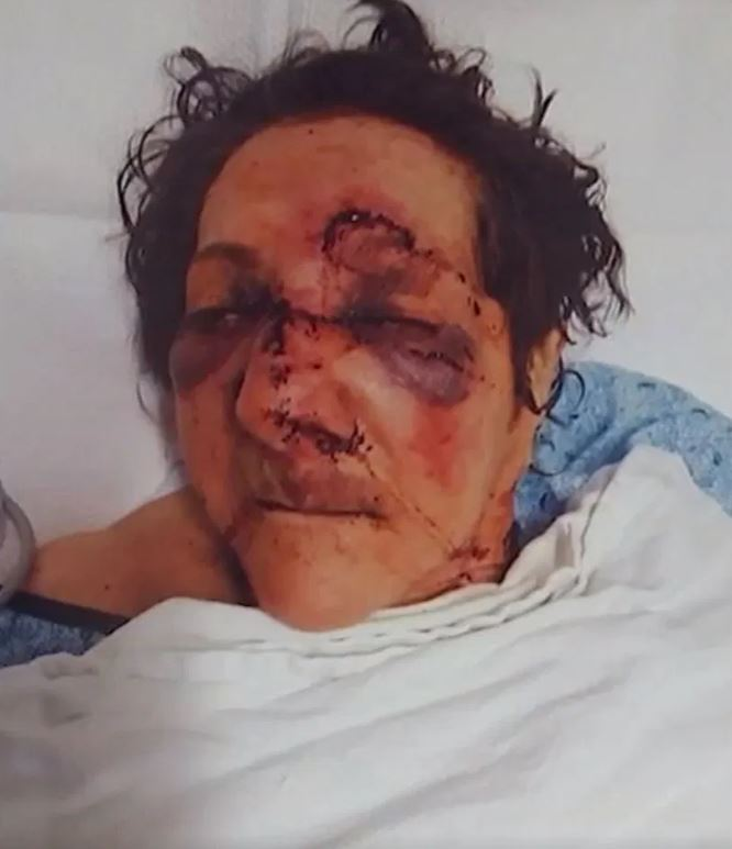 Son Shares Mum's Horrible Injuries After She Was 'Abused By Care Home Staff'