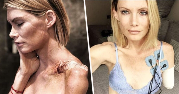 Stunt Woman's Compensation For Losing Arm On Set Doesn't Even Cover Medical Bills