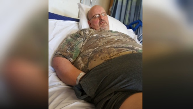 UK's Fattest Man Drops 36 Stone To Beat Depression And Organ Failure