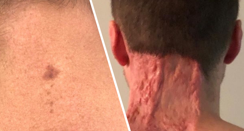 Dad Left With 15-Inch Scar After Spot Turns Out To Be Skin Cancer