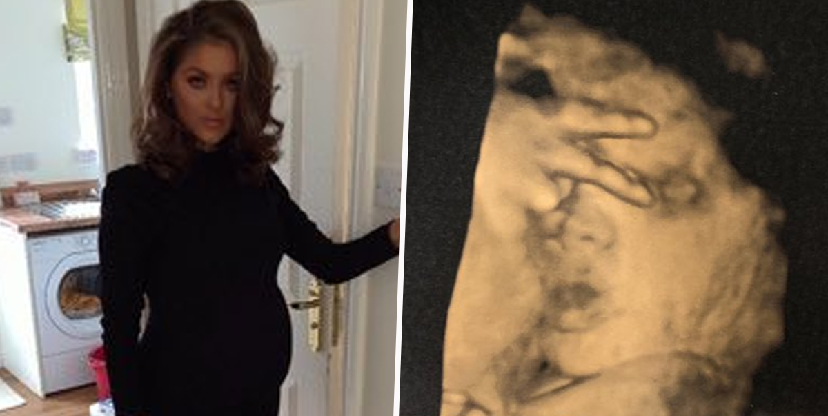 Baby tells mum to f*ck off in ultrasound scan