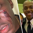 Two Black Gay US Soldiers Beaten In Nightclub Attack In Croatia