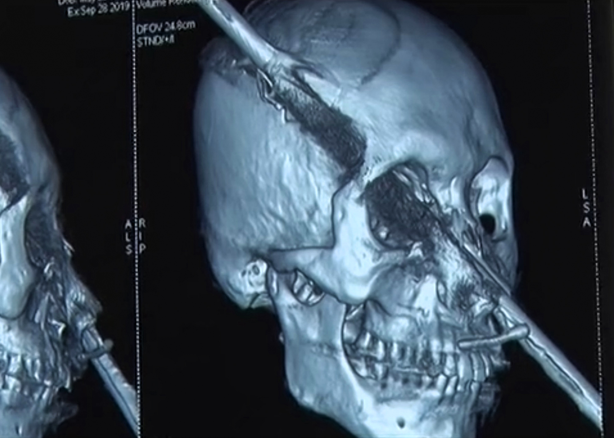 Construction worker impaled by steel bar