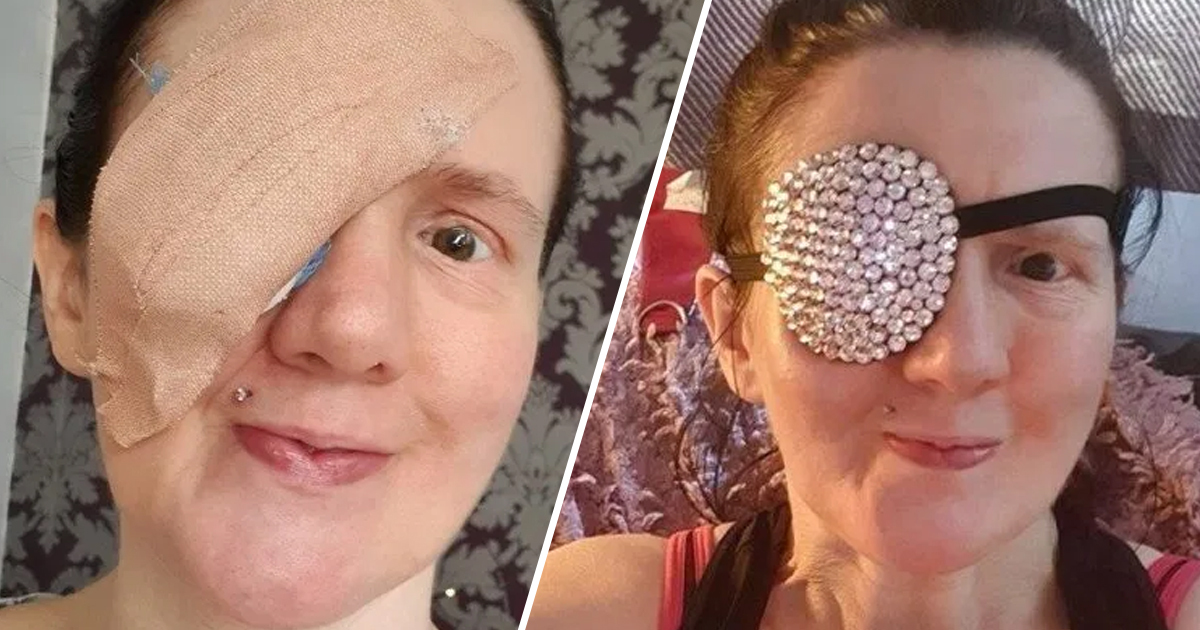 Woman Pops Out Her Own Cornea While Drying Face With Towel