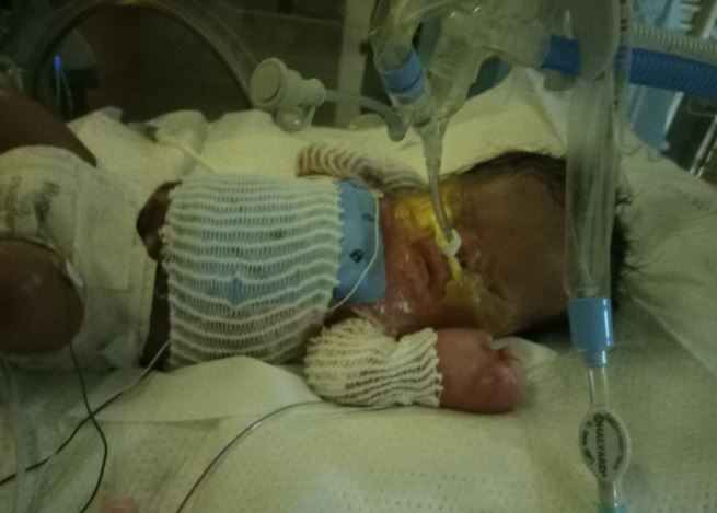 Baby born with no skin can finally be kissed by mum