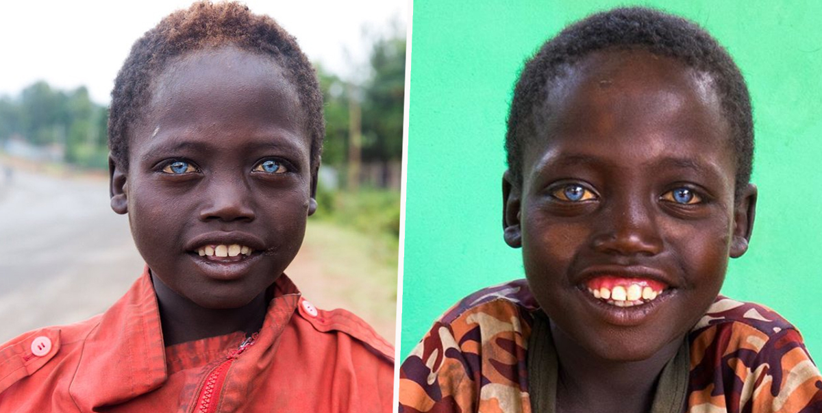 Ethiopian Boy Has Rare Bright Blue Eyes That Make Him Completely Unique