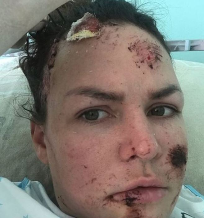 Beauty queen disgusted to look at herself after car crash