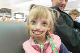 Girl born with half a face has 11 hour surgery to smile